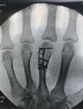 X-ray post-surgery (10/12/17)