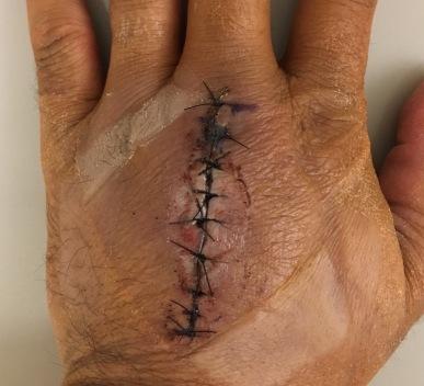 9 stitches (10/25/17)