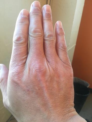 Right hand (12/6/17)